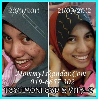 testi kulit 5